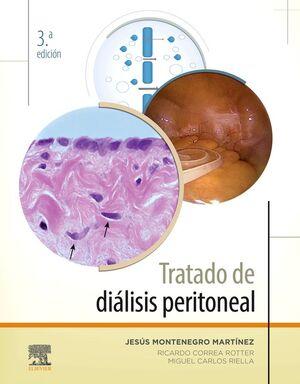 TRATADO DE DIÁLISIS PERITONEAL. 3ª ED.