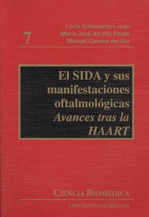 SIDA Y SUS MANIFESTACIONES OFTALMOLOGICAS, EL
